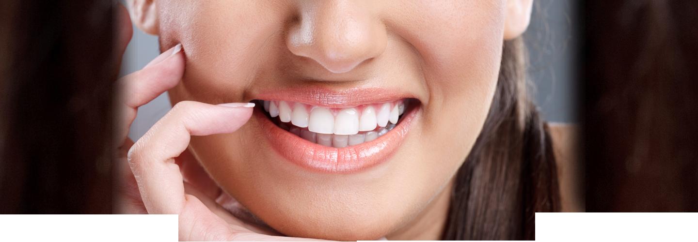 Dental Lumineers In San Diego